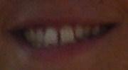 Ho due perplessità sul mio trattamento ortodontico