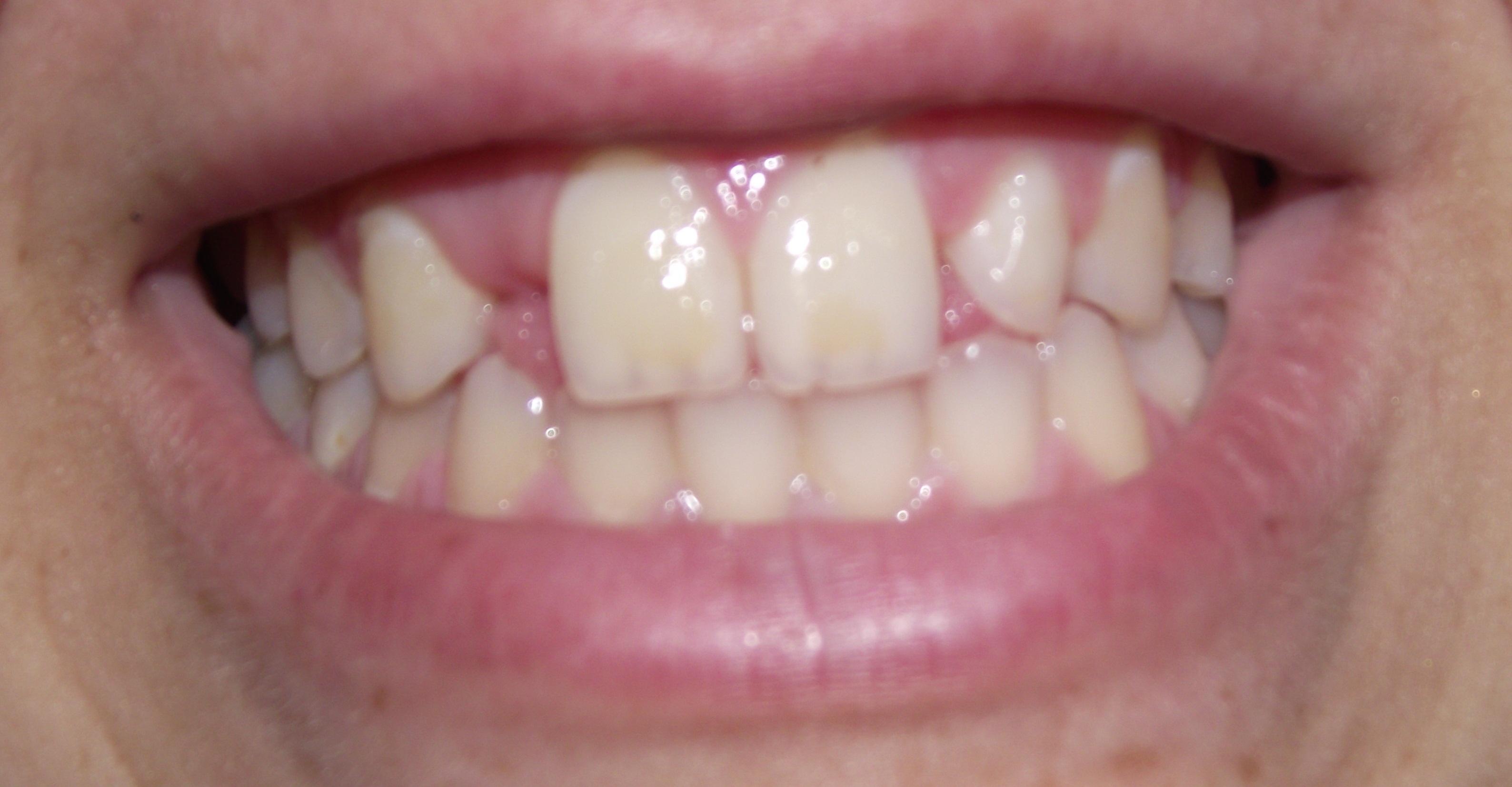 SEGUITO ALLA DOMANDA: Ho 19 anni e devo fare un ponte dentale