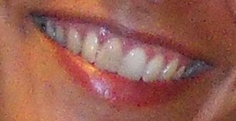 Ho dovuto devitalizzare un incisivo superiore e la discromia con gli altri denti ora si inizia a notare sempre più
