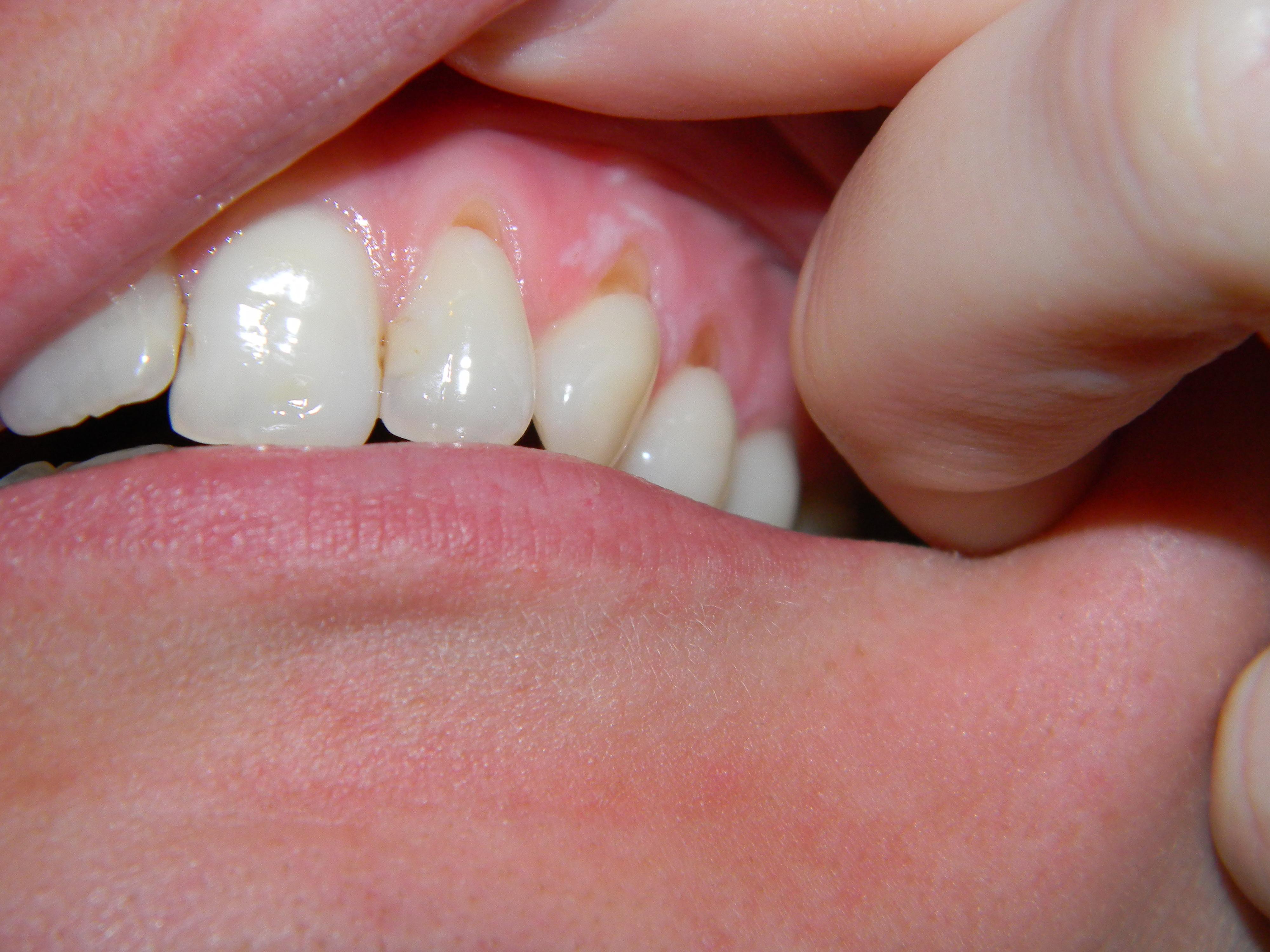 Seguito alla domanda: La mia situazione dentale è complessa e vorrei il Vostro parere