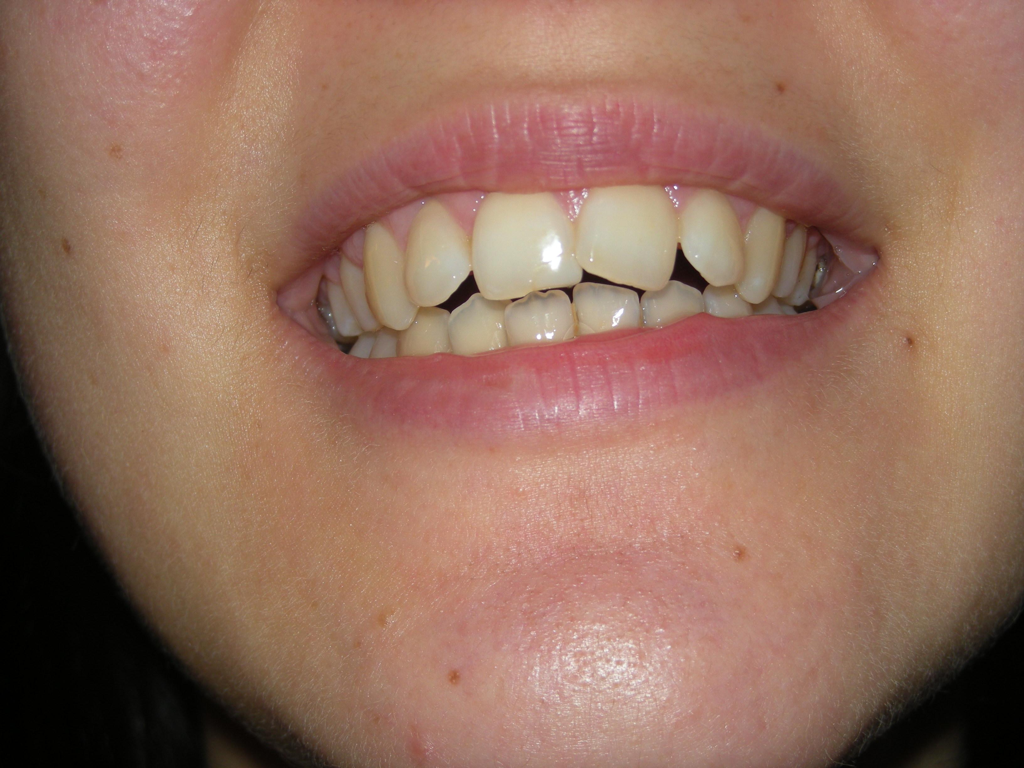 Ulteriore seguito alla domanda: Ho un problema di malocclusione e sovraffollamento dentario all'arcara superiore