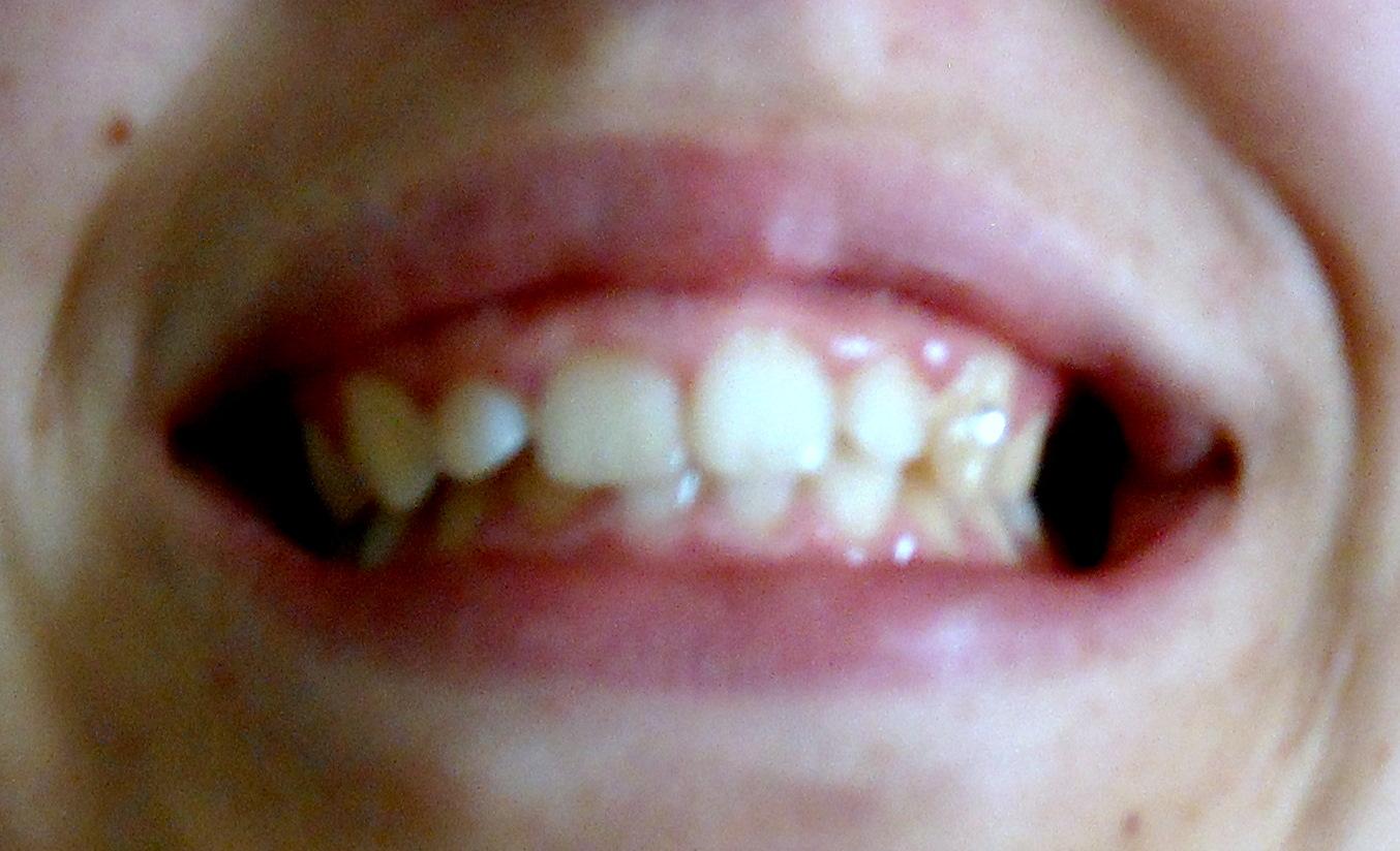 Ho un problema di gummy smile.