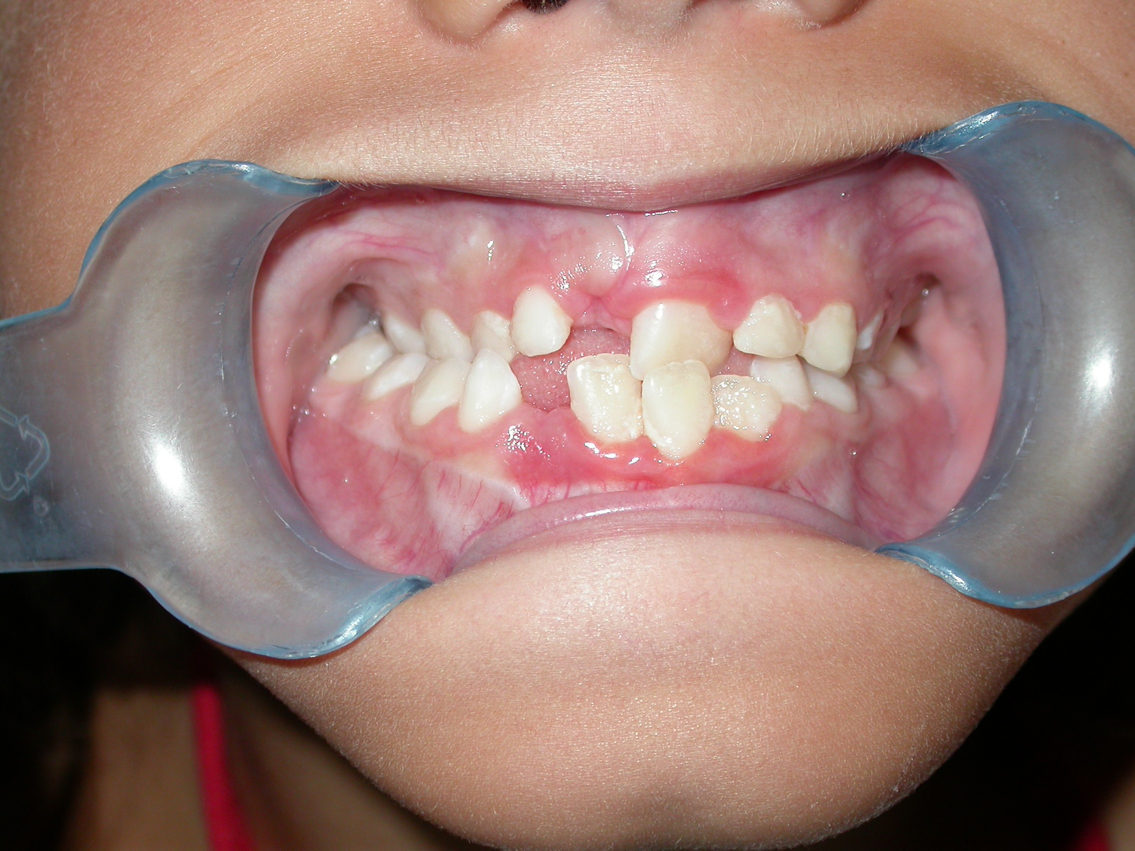 maschera facciale dentista
