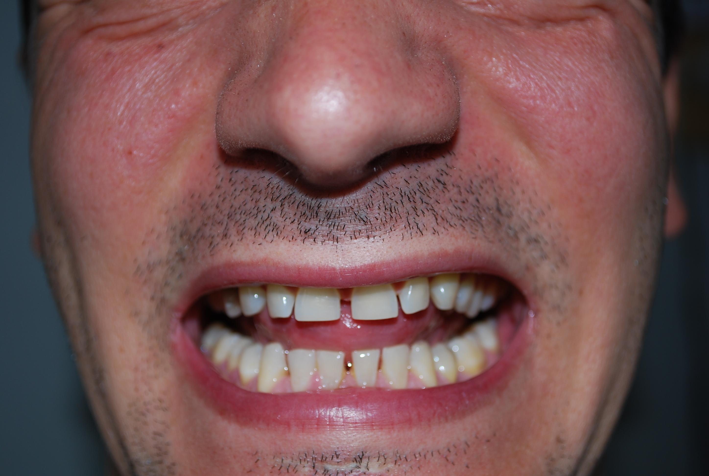 Eccessivo spazio tra i denti