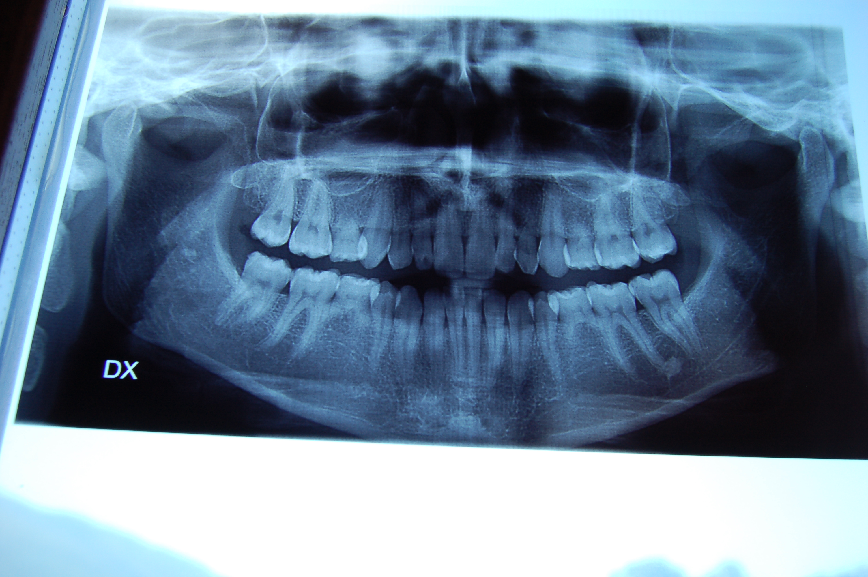 SEGUITO ALLA DOMANDA: Ho un'agenesia dentale