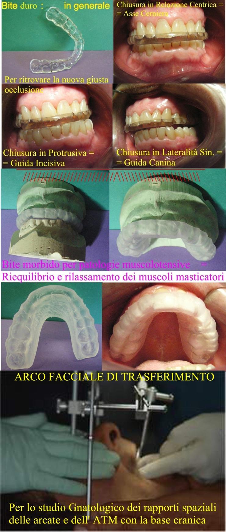 Diversi tipi di Bite e in basso Arco Facciale di Trasferimento per i rapporti spaziali con la base cranica. Da casistica del Dr. Gustavo Petti di Cagliari