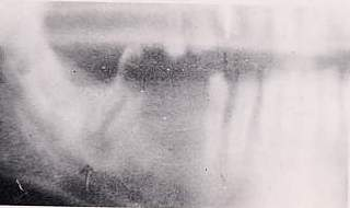 Molare in necrosi con osteolisi periapicale da trattare con terapia endodontica  simile alla sua immagino