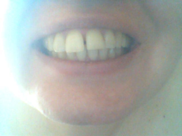 Ho i denti del giudizio dell'arcata inferiore occlusi, in maniera orizzontale rispetto alla mandibola