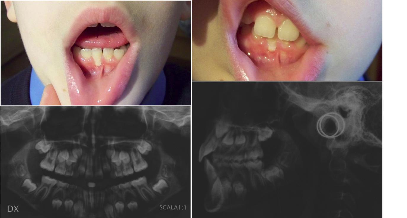 Rx e foto per la domanda: Mio figlio di 9 anni, dopo aver addentato un frutto, ha avuto la regressione della gengiva dell'incisivo inferiore