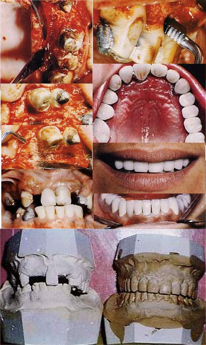 Grave parodontite prima e durante e dopo la terapia Parodontale Riabilitativa completa. Da casistica del Dr. Gustavo Petti Parodontologo in Cagliari
