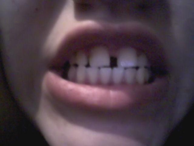 Nell'età dello sviluppo il mio diastema si è aggravato nel senso che i denti incisivi si sono allargati ulteriormente.