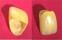 Corona protesica provvisoria in composito con armatura in fiobra di vetro. Da casistica del Dr. Gustavo Petti e della Dr.ssa Claudia Petti di Cagliari