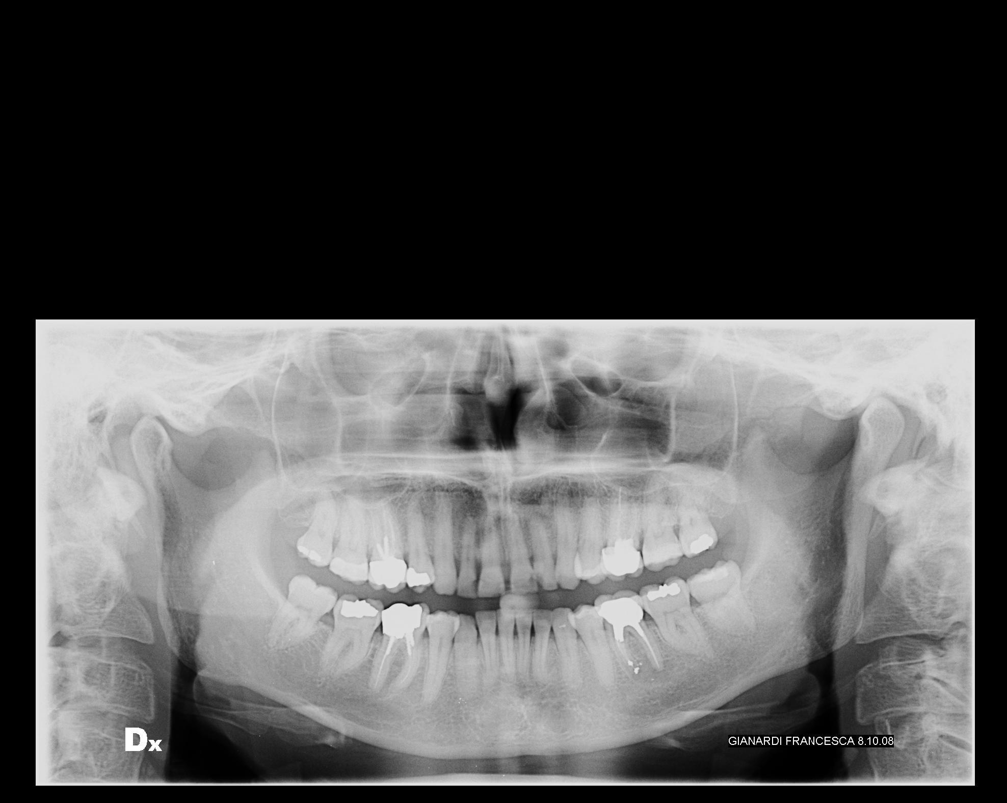 Seguito domanda del 3/10/2008: Problema ad un dente devitalizzato a cui è stata fatta un'apicectomia