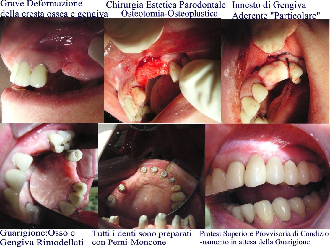 Chirurgia estetica parodontale per ricostruire cresta ossea e gengivale distrutta. Da casistica Parodontale del Dr. Gustavo Petti di Cagliari