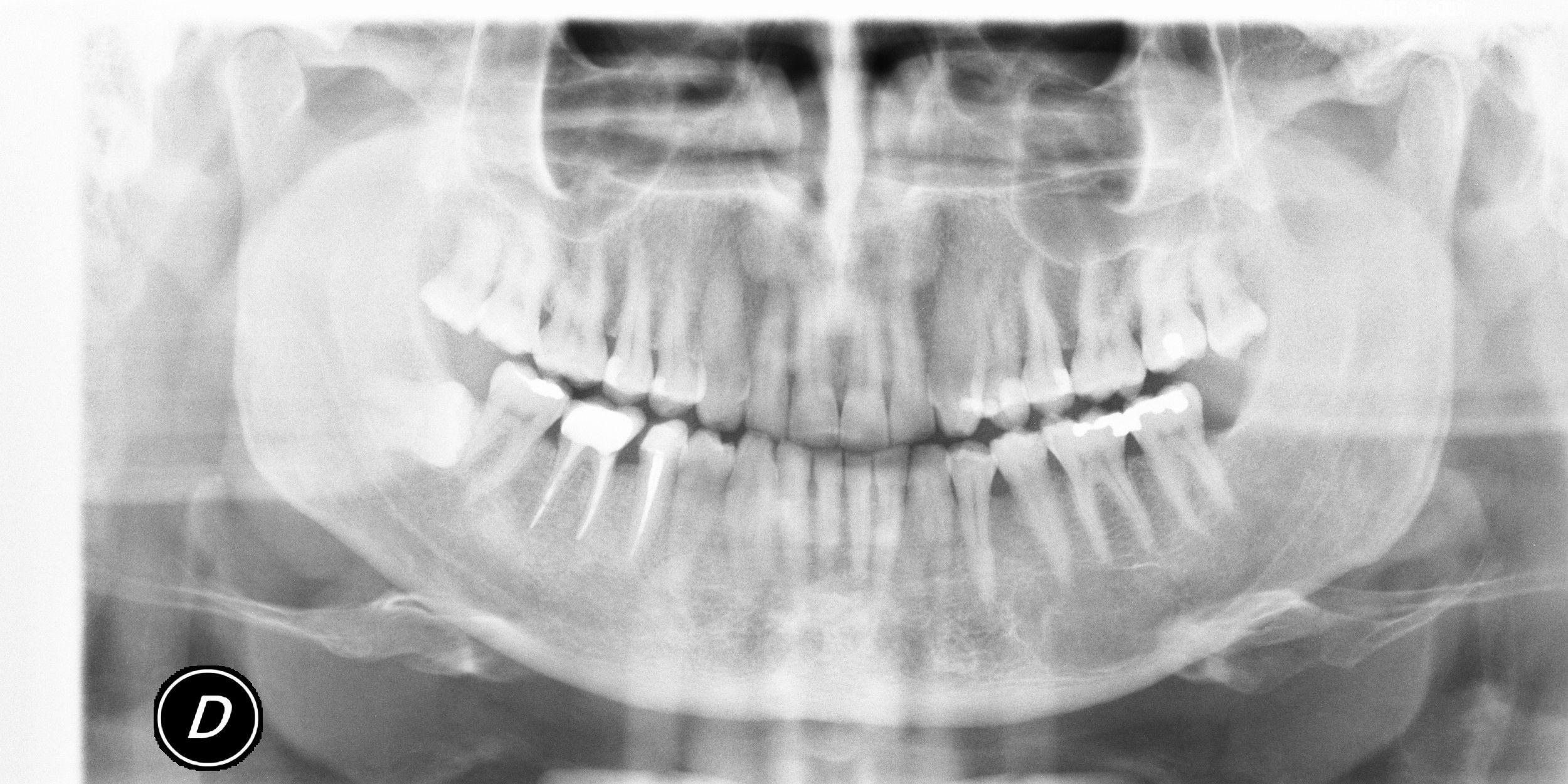 25 anni fa mi fu diagnosticata l'inclusione di tutti e due i denti del giudizio inferiori.