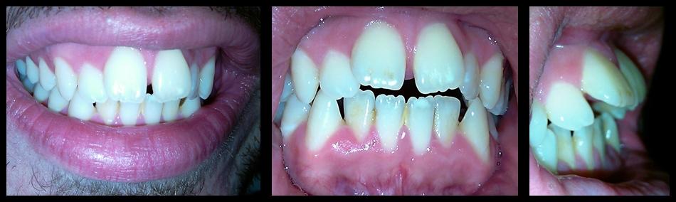 Sin da piccolo ho sempre avuto i denti storti