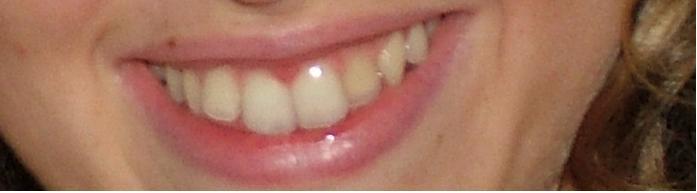 Nessuno ha saputo darmi una spiegazione dell'inefficacia della cura del precedente ortodonzista