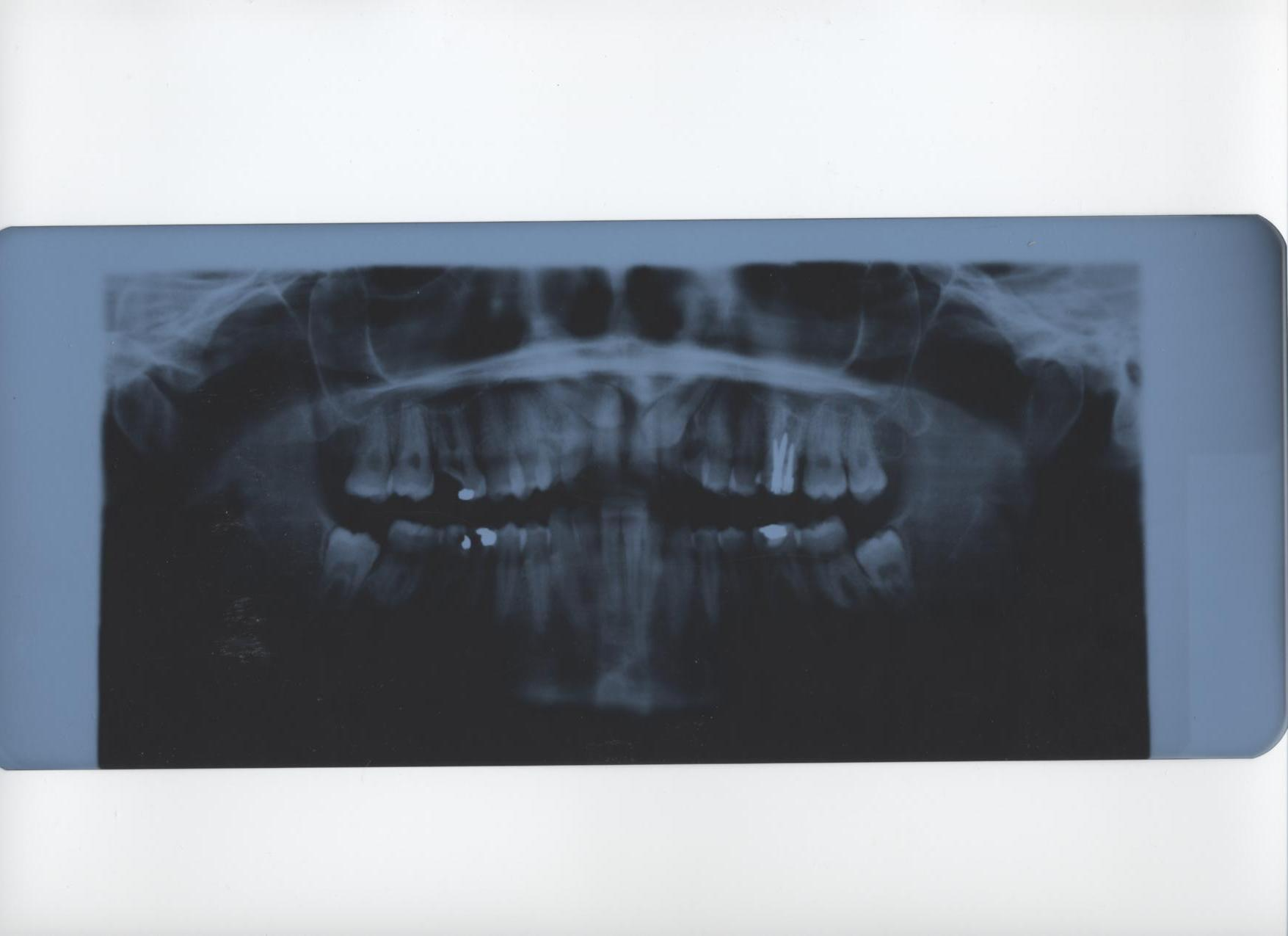 Seguito domanda del 4/11/2008: Caduta denti da latte in età adulta