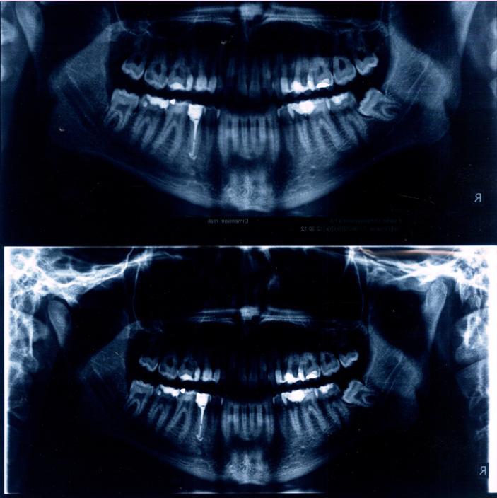 Lettura ortopanoramica dentaria