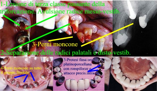 Molare recuperato con un complesso intervento di chirurgia parodontale, endodontica, protesica (perno moncone, in un molare in cui � stata estratta la radice pi� compromessa e separate le altre due