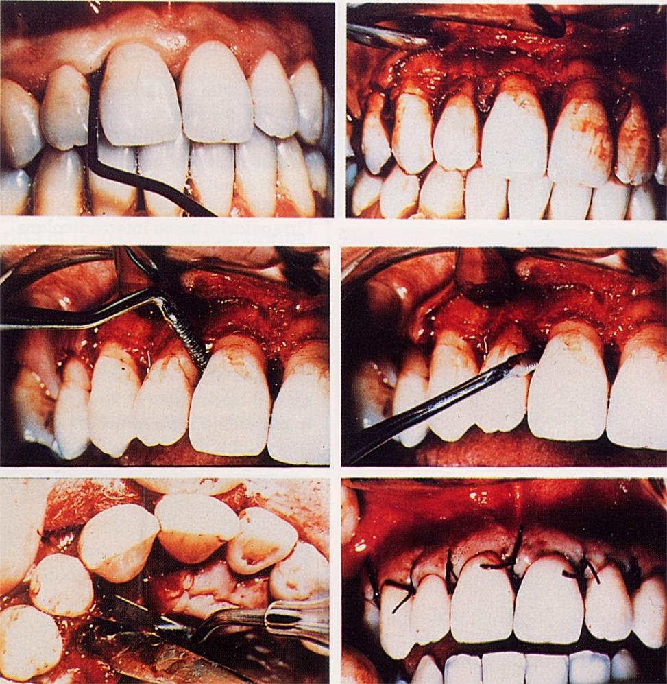 Chirurgia estetica Parodontale. Da Casistica Clinica del Dr. Gustavo Petti di Cagliari