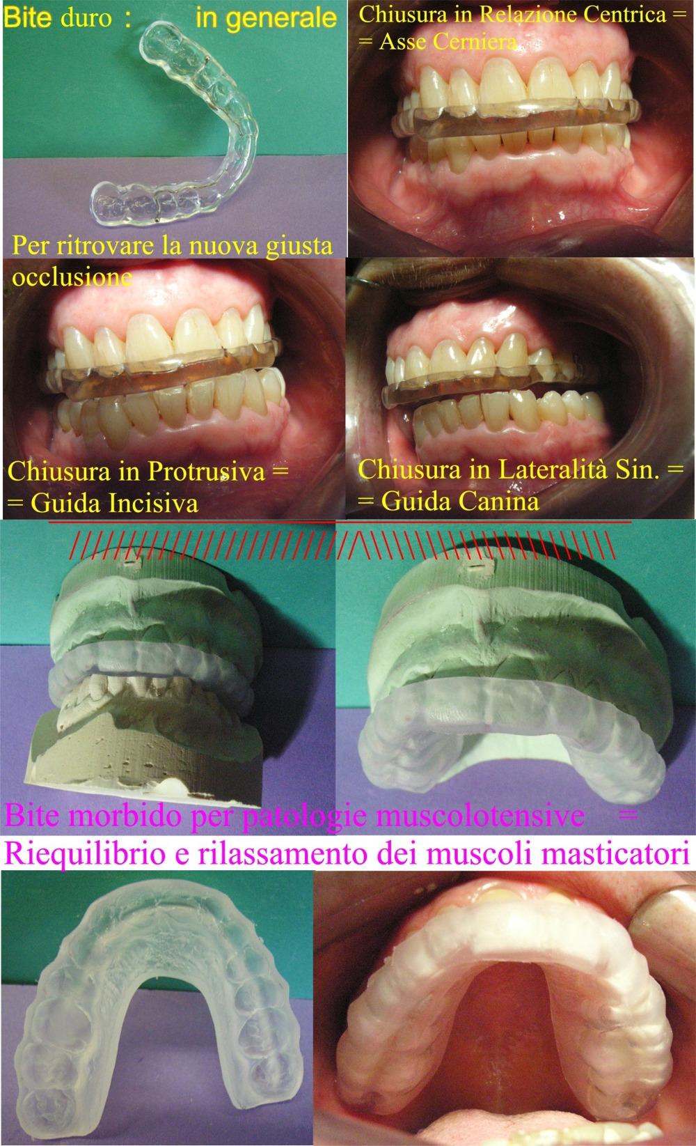 Il Bite � una cosa seria e non � il toccasana e la Gnatologia ancora di pi�. Dr. Gustavo Petti