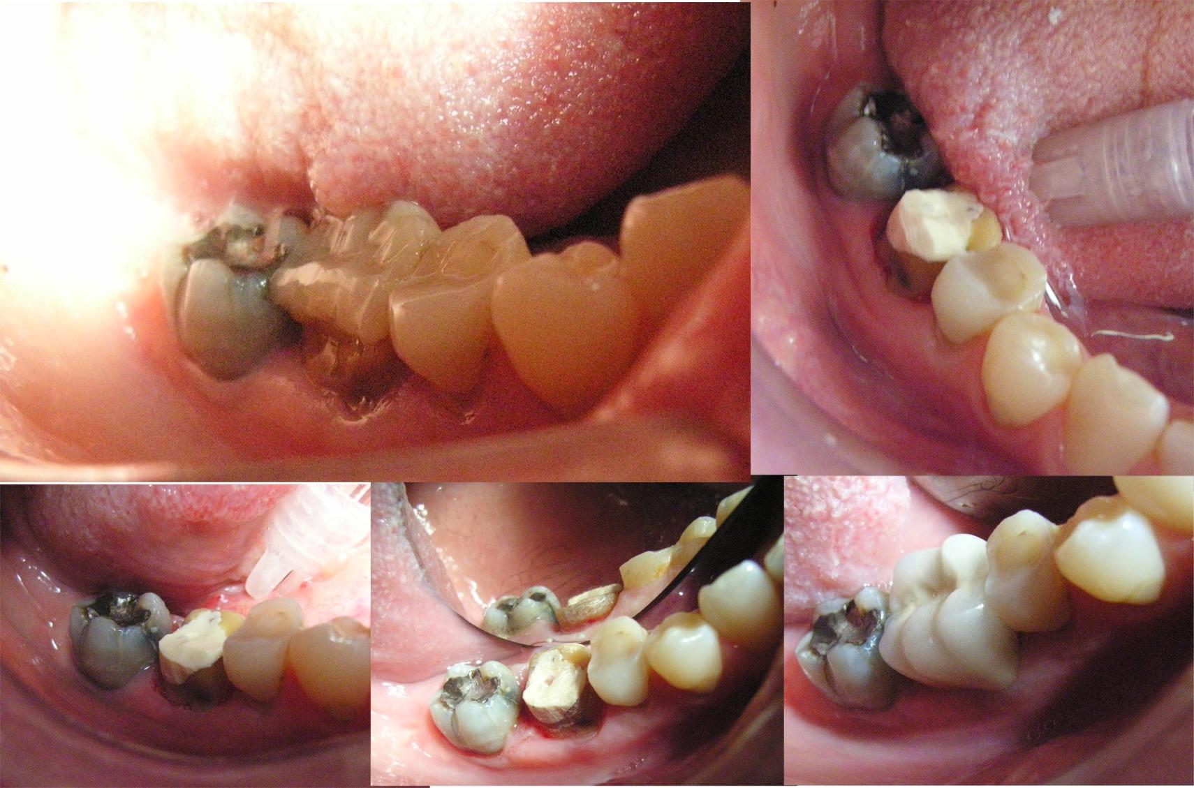 Pernomoncone-inlay in fibra di vetro carbonio e corona in oroplatinoporcallana per ricostruire un molare molto compromesso