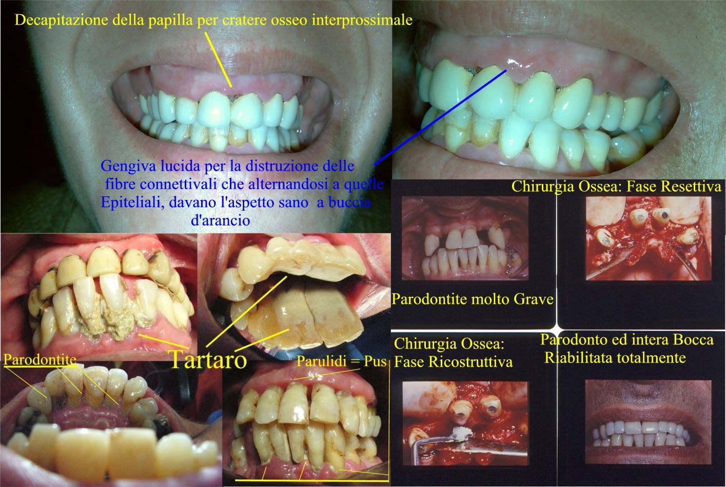 Gengive lucide. Vedere testo. Parodontite in varie fasi e terapia parodontale con riabilitazione orale completa in un caso clinico complesso. Da casistica del Dr. Gustavo Petti Parodontologo in Cagliari