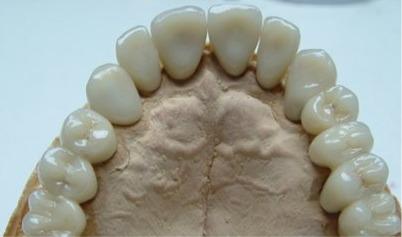 Protesi circolare fissa in Zirconio porcellana. Da casistica del Dr. Gustavo Petti e della Dr.ssa Claudia Petti di Cagliari