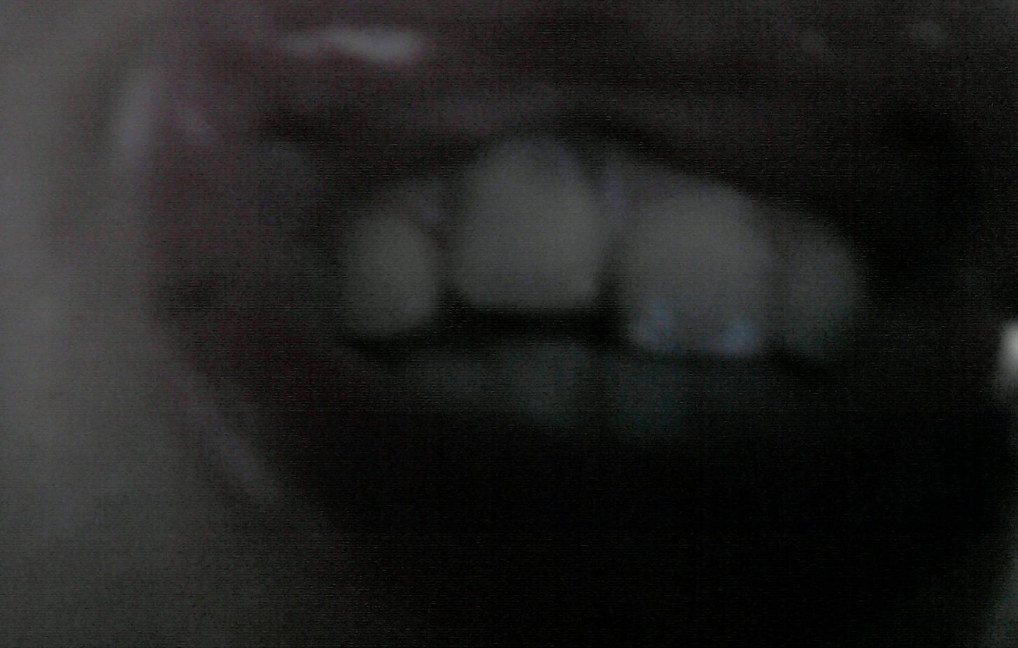 Ho un dente incisivo più in alto dell'altro