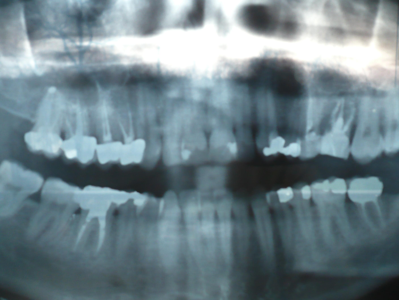 Ho un molare che 8 anni fa, a causa di una fistola, è stato estratto