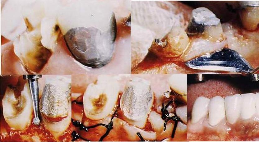 Terapia Parodontale Chirurgica della Parodontite. Esempio da casistica del Dr. Gustavo Petti Parodontologo in Cagliari