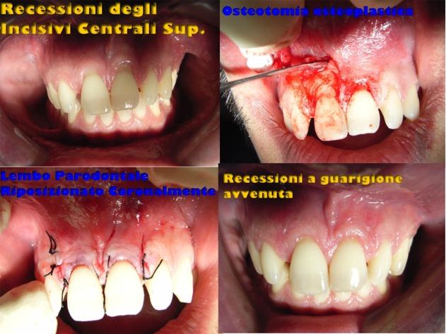Recessioni Gengivali, una delle tante terapie descritte nei miei casi clinici