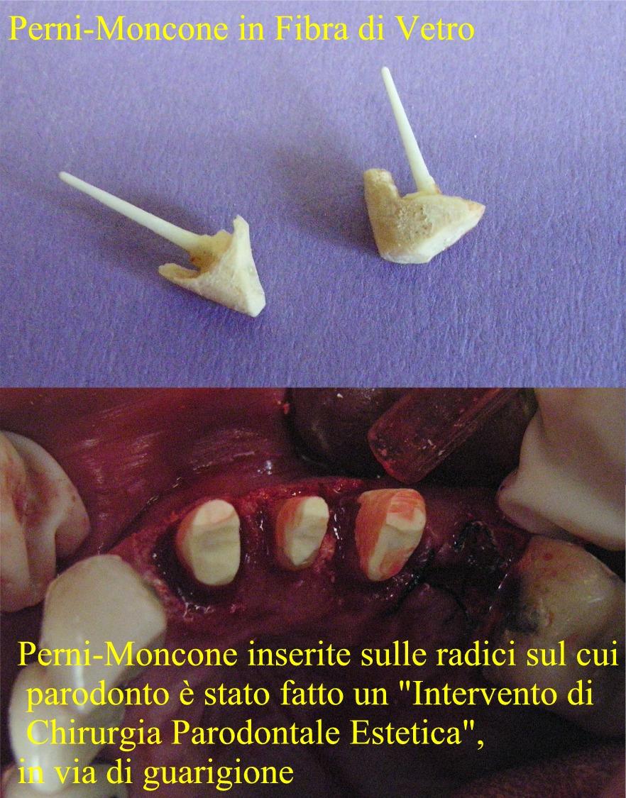 sulla destra dei perni moncone vede la sutura per una estrazione con innesto osseo per non avere inestetismi