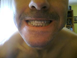 Ho 41 anni e da circa 30 ho tutti i denti che presentano un colore scuro