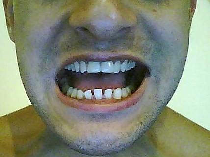 Eccesso di spazio scheletrico nell'arcata dentale inferiore
