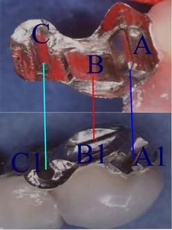 Protesi con attacchi di precisione fresature e bracci di appoggio e coulisse simile