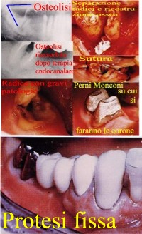 Osteolisi periapicale in parodontite grave della forcazione. Da Casistica del Dr. Gustavo Petti e Dr.ssa Claudia Petti