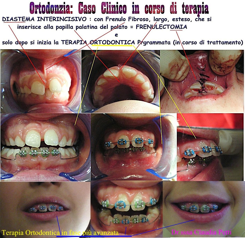 Ortodonzia fissa e diastema interincisivo grave con interposizione di frenulo e relativa frenulectomia. Da casistica della Dr.ssa Claudia Petti e del Dr. Gustavo Petti  di Cagliari