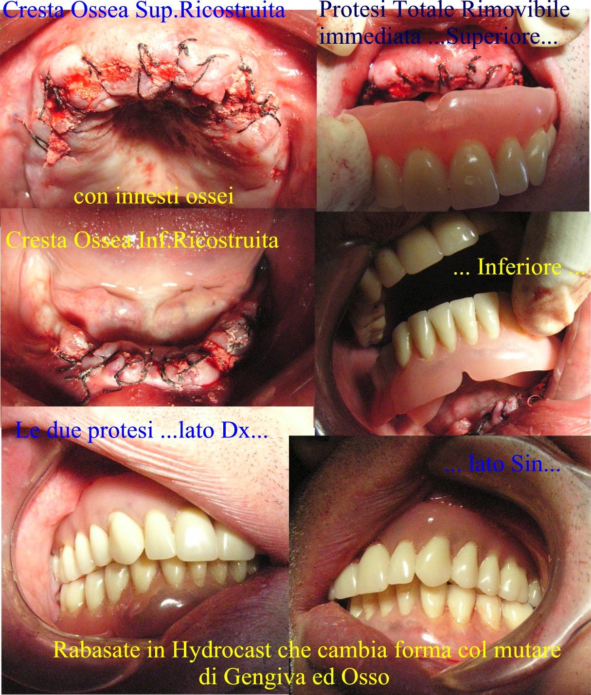 Protesi totale immediata in Hidrocast con ricostruzione ossea parodontale della cresta ossea. Dr. Gustavo Petti Cagliari