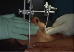 Arco facciale di trasferimento durante una visita Gnatologica per valutare i rapporti spaziali tra denti e base cranica ed ATM.