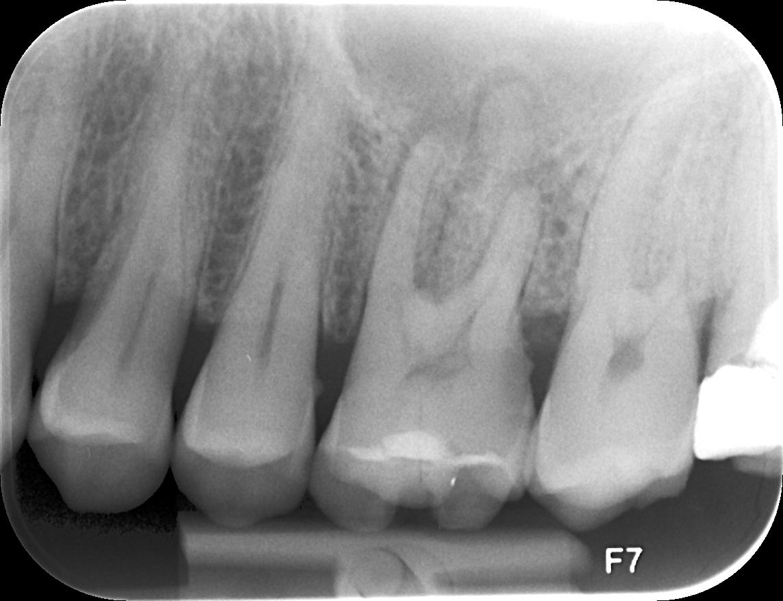 Ho eseguito la radiografia del dente dalla quale risulta che è spezzato al centro...