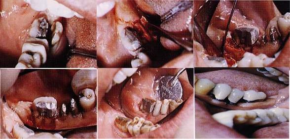 Frattura grave di un  molare trattato con la chirurgia Parodontale. Da casistica del Dr. Gustavo Petti e della Dr.ssa Claudia Petti di Cagliari