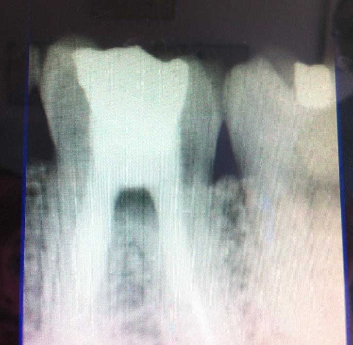 A dicembre del 2007 ho subito la devitalizzazione di un molare...