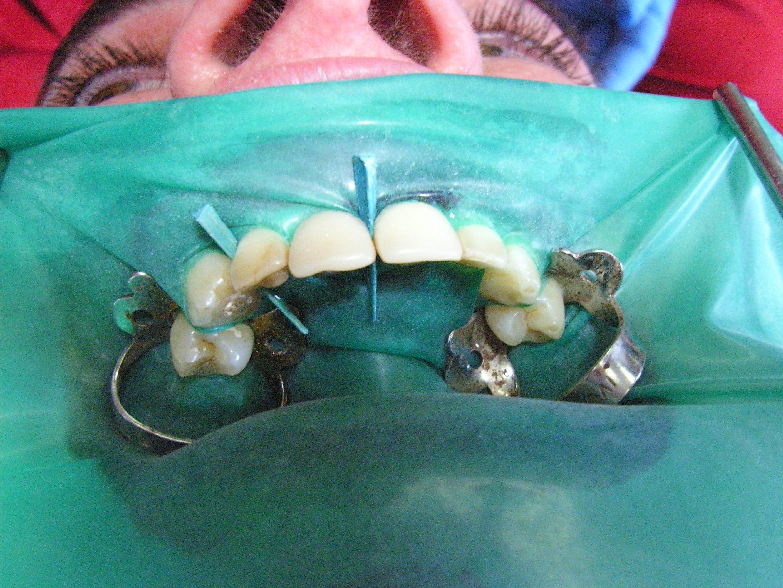 Isolamento di denti da curare conservativamente con otturazioni, isolati con diga. Da casistica del Dr. Gustavo e Dr.ssa Claudia Petti di Cagliari