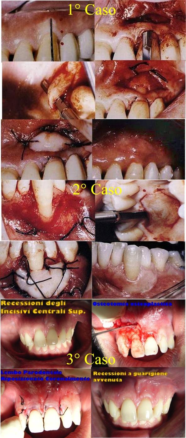 Recessioni Gengivali ed alcune terapie parodontali per curarle. Da casistica del Dr. Gustavo Petti Pasrodontologo in Cagliari