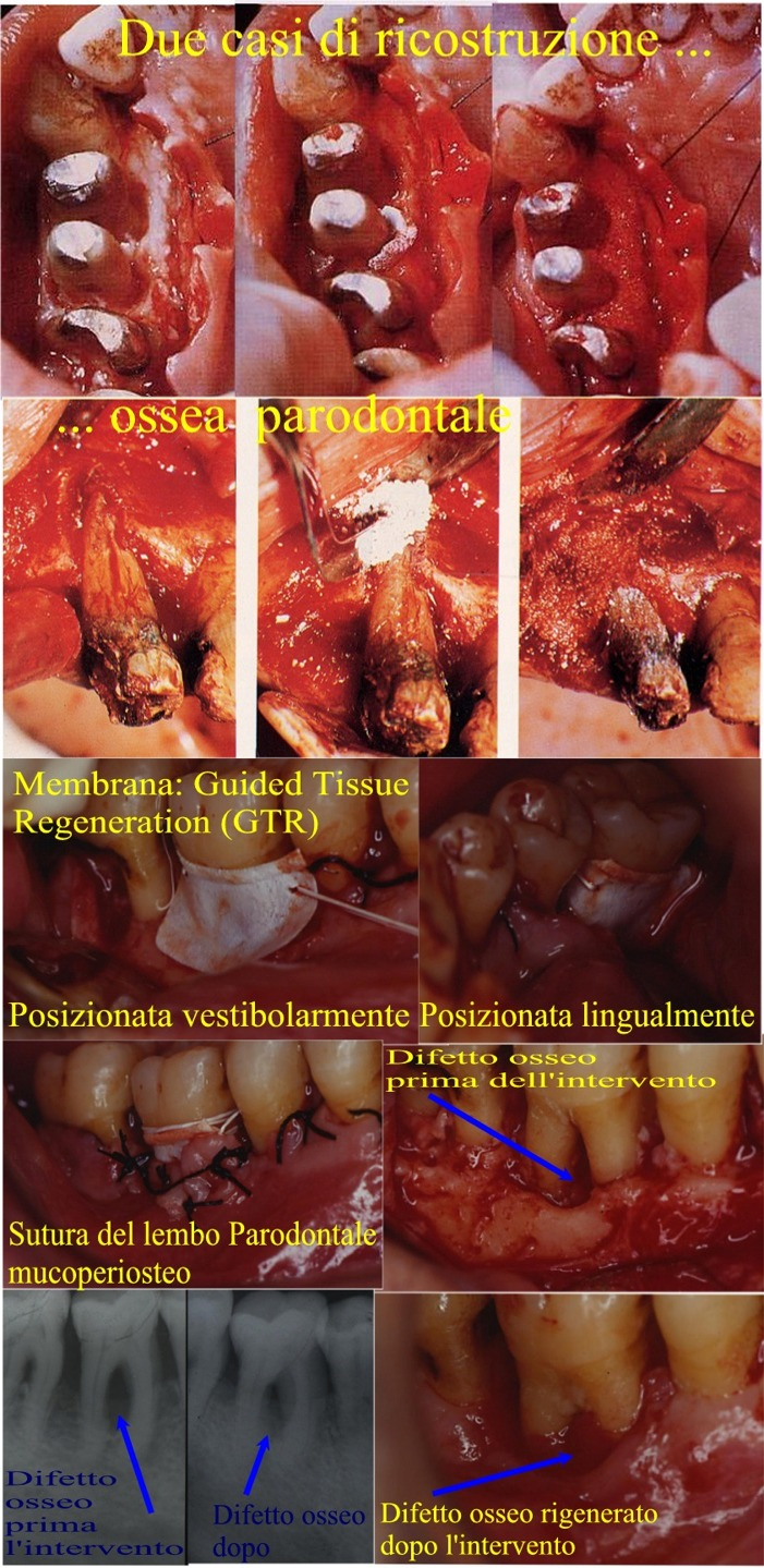 Tasche e difetti parodontali ossei a più pareti complesse curate con chirurgia parodontale ricostruttiva ossea e nella ultima con chirurgia ossea parodontale rigenerativa con membrane. Da casistica del Dr. Gustavo Petti Parodontologo in Cagliari