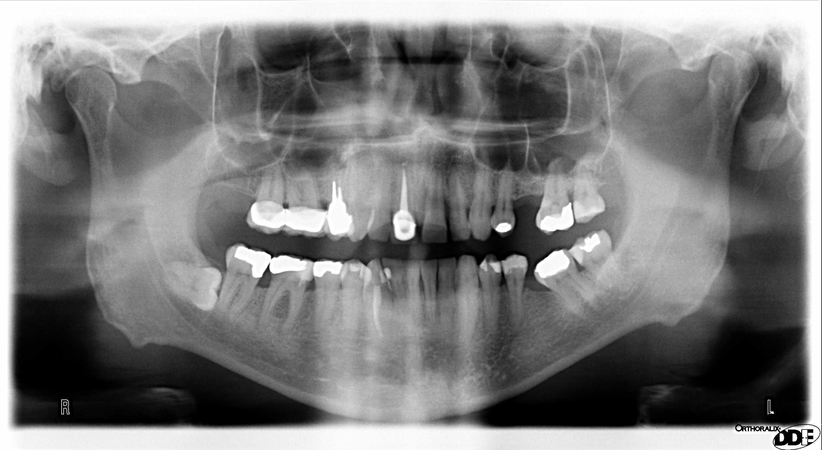 SEGUITO ALLA DOMANDA: Il problema è che ho sempre questo presunto ascesso sotto il dente