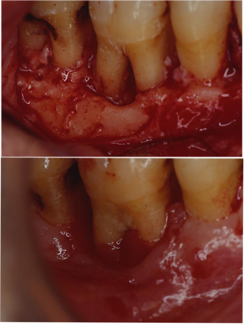 Tasca parodontale con lesione della biforcazione, in alto prima, in basso dopo la chirurgia Parodontale rigenerativa con membrana artificiale riassorbibile, alla riapertura di controllo