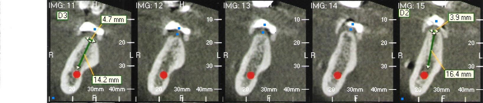 Tc-cone-beam-3d-Muolo-zona-45-46-bis.JPG